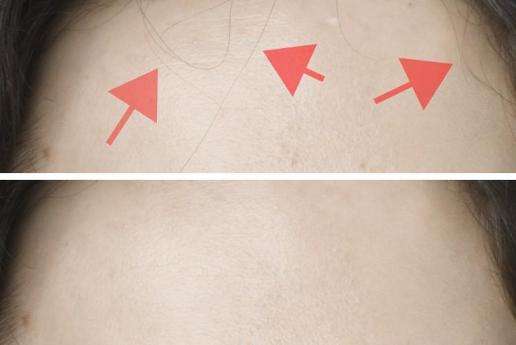 Einzelne Haarstränen auf homogener Fläche retuschieren