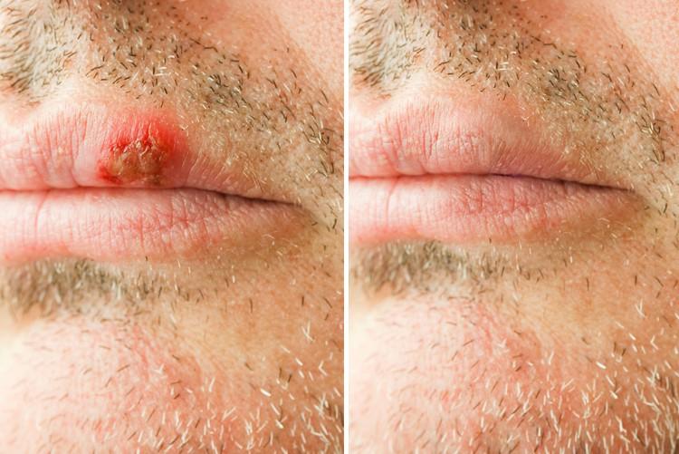 Fieberbläschen und Hautrötung auf nicht homogener Struktur