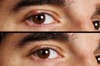 Hautausschlag an nicht homogener Struktur