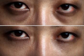 starke Augenringe in Lichtverlauf abmildern