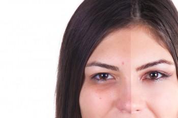 Haut weichzeichnen plus Schönheitsflecken entfernen