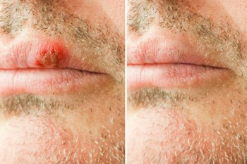 Aufwändigere medizinische Spezialretusche: Fieberbläschen entfernen